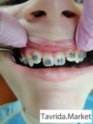 Детская стоматология и ортодонтия